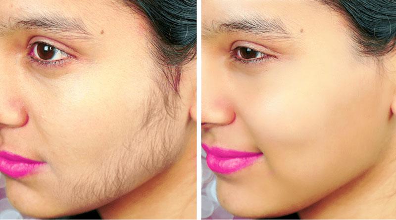 5 Ways to Remove Facial Hair