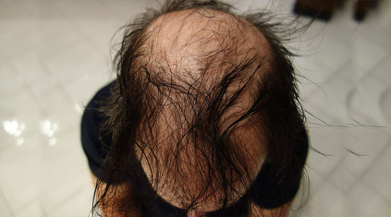 What Are Hair Building Fibers